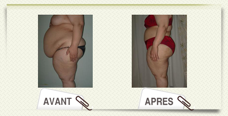 photos abdominoplastie