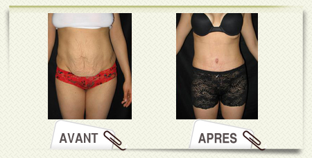 Abdominoplastie photo